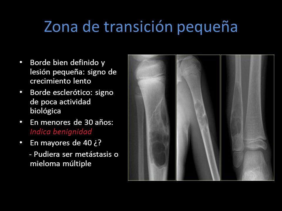 Zona de transición pequeña Borde bien definido y lesión pequeña: signo de crecimiento lento Borde esclerótico: signo de poca actividad biológica En me