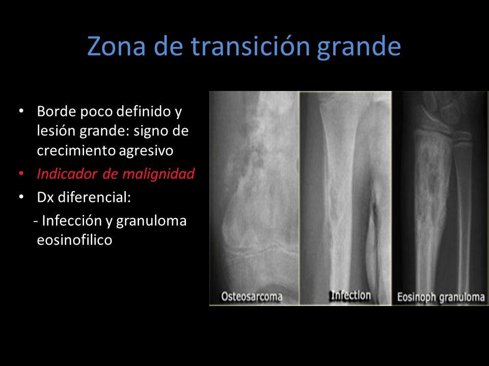 Zona de transición grande Borde poco definido y lesión grande: signo de crecimiento agresivo Indicador de malignidad Dx diferencial: - Infección y gra