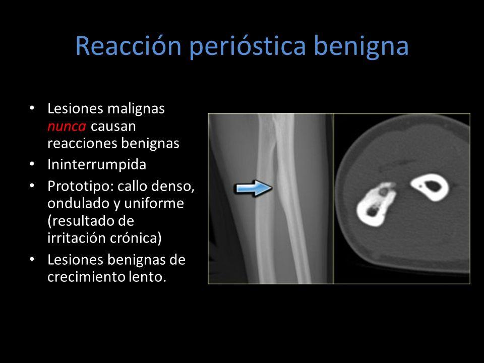 Reacción perióstica benigna Lesiones malignas nunca causan reacciones benignas Ininterrumpida Prototipo: callo denso, ondulado y uniforme (resultado d