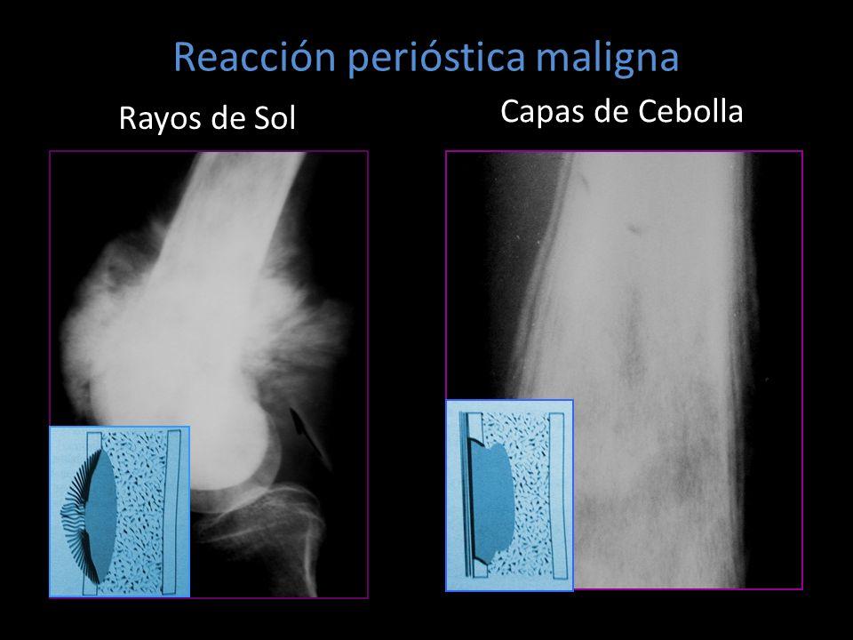 Reacción perióstica maligna Rayos de Sol Capas de Cebolla
