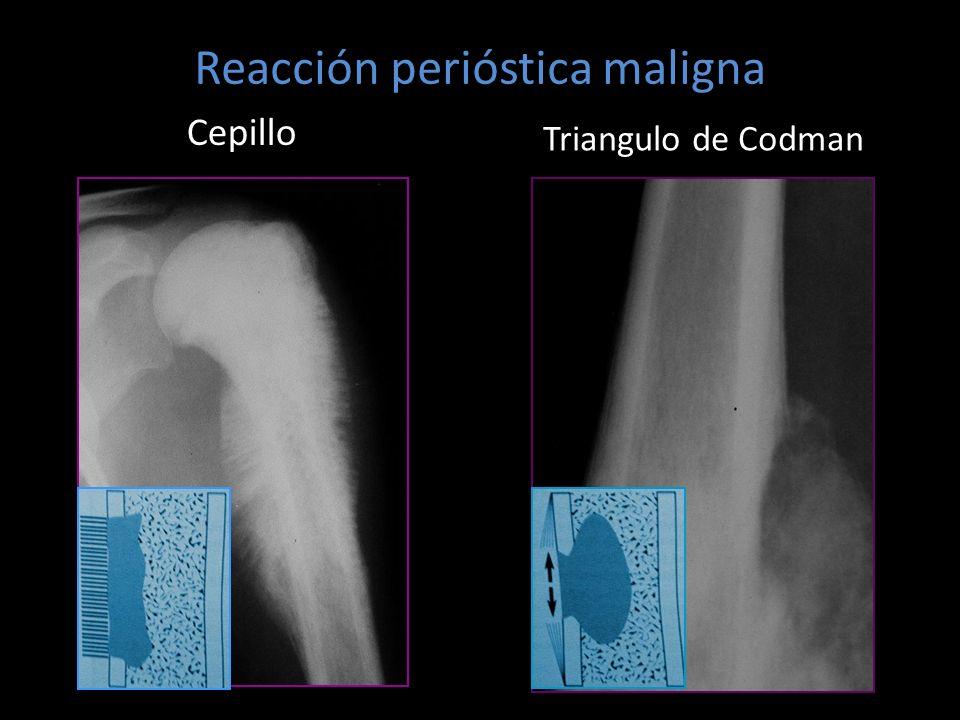 Cepillo Triangulo de Codman Reacción perióstica maligna