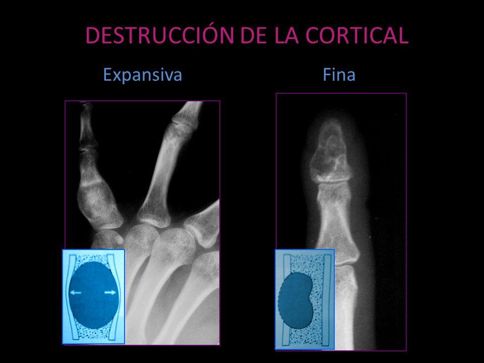 DESTRUCCIÓN DE LA CORTICAL ExpansivaFina