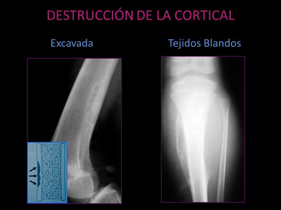 DESTRUCCIÓN DE LA CORTICAL ExcavadaTejidos Blandos