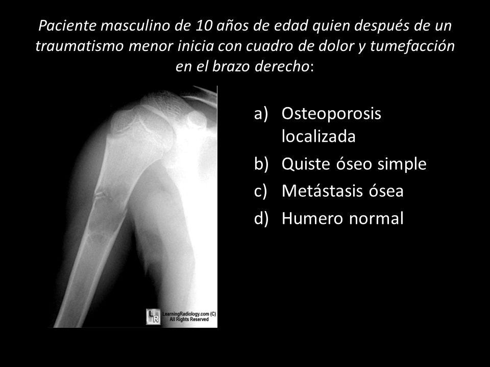 Paciente masculino de 10 años de edad quien después de un traumatismo menor inicia con cuadro de dolor y tumefacción en el brazo derecho: a)Osteoporos