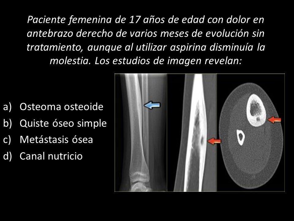 Paciente femenina de 17 años de edad con dolor en antebrazo derecho de varios meses de evolución sin tratamiento, aunque al utilizar aspirina disminuí