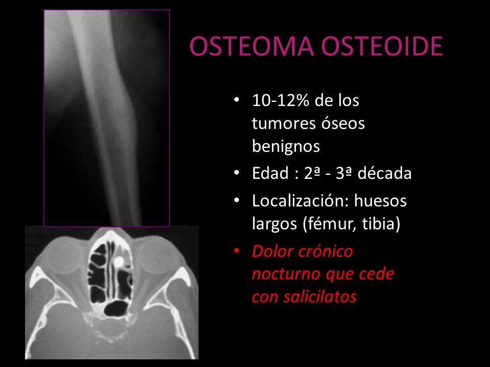 OSTEOMA OSTEOIDE 10-12% de los tumores óseos benignos Edad : 2ª - 3ª década Localización: huesos largos (fémur, tibia) Dolor crónico nocturno que cede