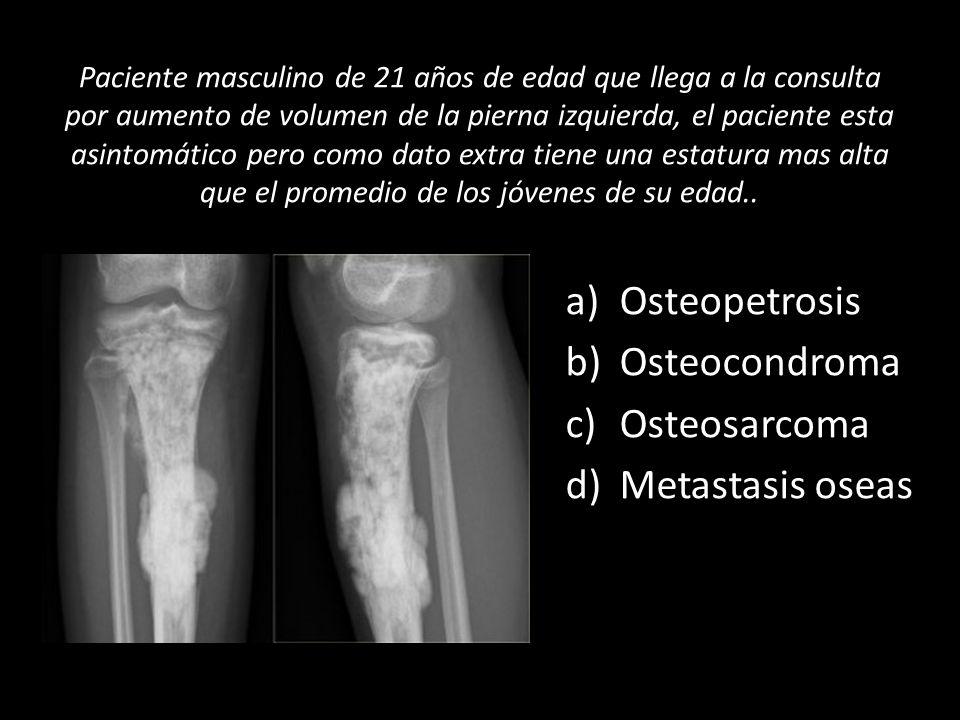 Paciente masculino de 21 años de edad que llega a la consulta por aumento de volumen de la pierna izquierda, el paciente esta asintomático pero como d