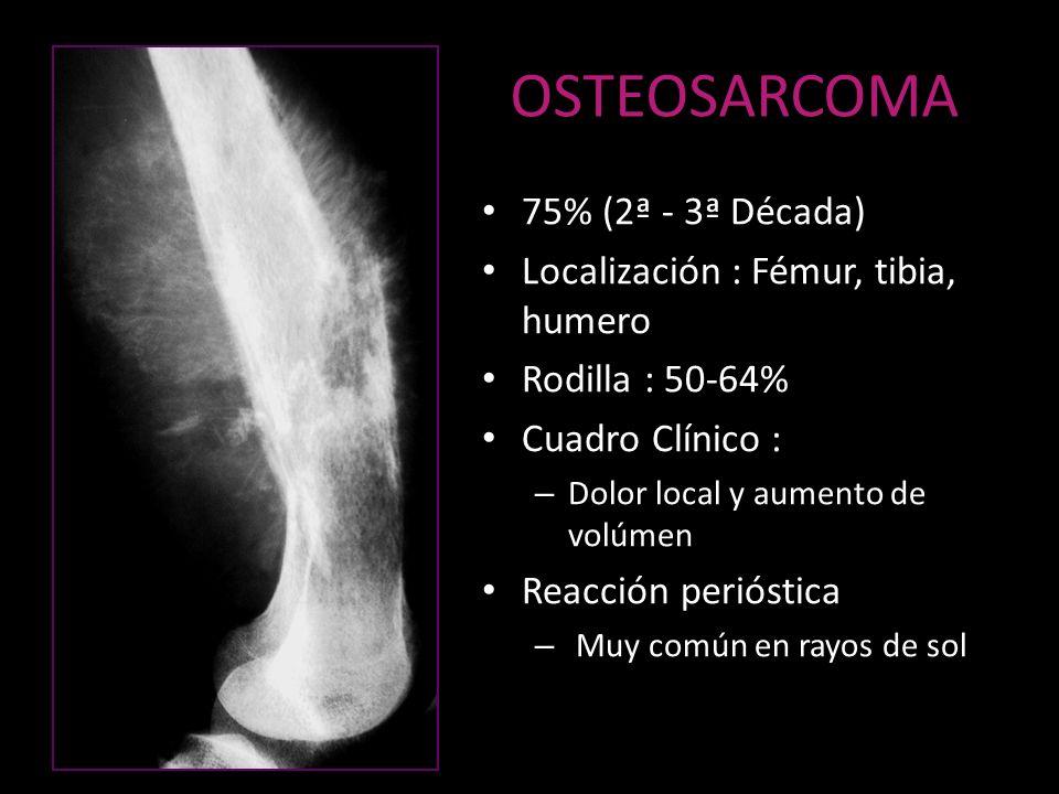 OSTEOSARCOMA 75% (2ª - 3ª Década) Localización : Fémur, tibia, humero Rodilla : 50-64% Cuadro Clínico : – Dolor local y aumento de volúmen Reacción pe