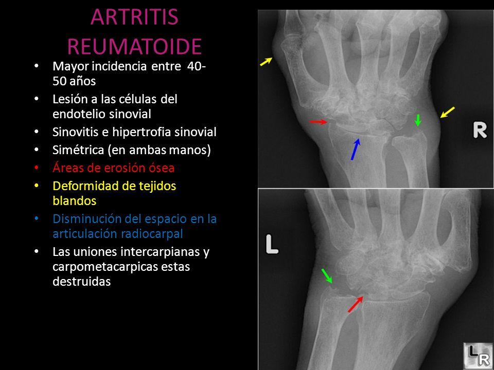ARTRITIS REUMATOIDE Mayor incidencia entre 40- 50 años Lesión a las células del endotelio sinovial Sinovitis e hipertrofia sinovial Simétrica (en amba