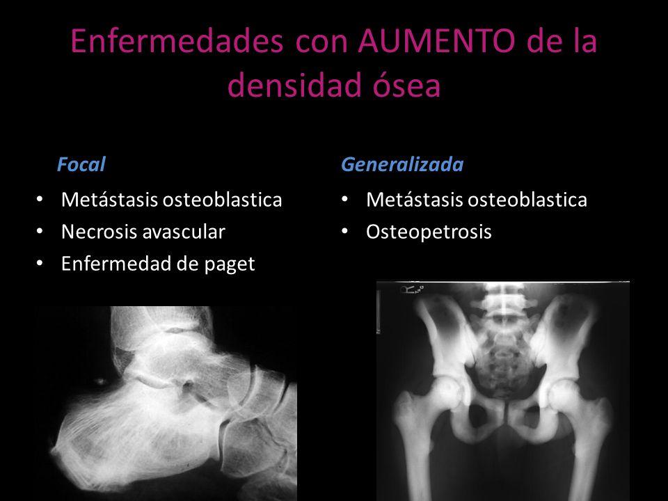Enfermedades con AUMENTO de la densidad ósea Focal Metástasis osteoblastica Necrosis avascular Enfermedad de paget Generalizada Metástasis osteoblasti