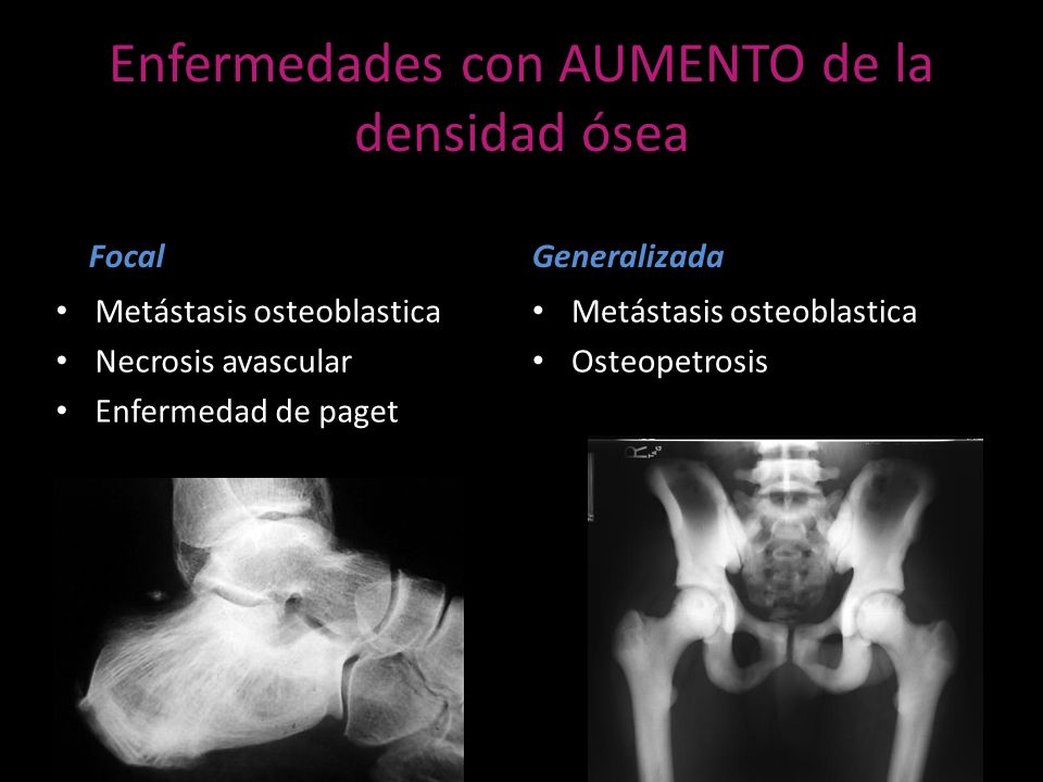 Enfermedades con DISMINUCIÓN de la densidad ósea Focal Metástasis osteoliticas Mieloma múltiple Osteomielitis