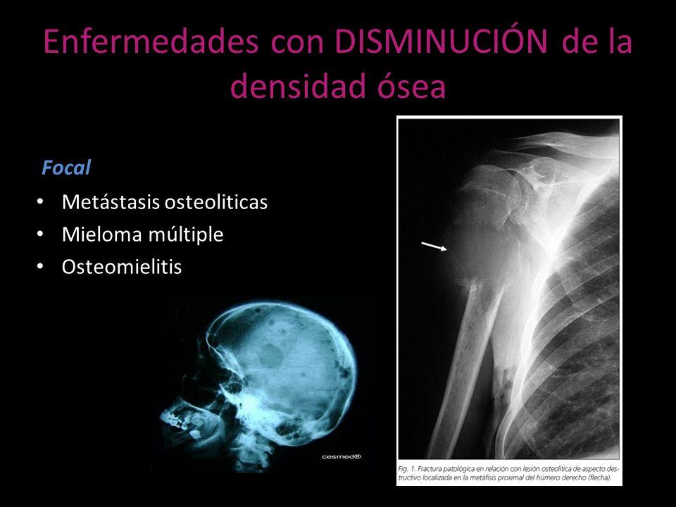 ENFERMEDAD METASTASICA ÓSEA TUMORES MAS COMUNES QUE DAN METÁSTASIS A HUESO (80%) TipoApariencia Cáncer de PróstataOsteoblastico Cáncer de mamaMixto Cáncer de pulmónPredominantemente osteolitico Tumor de células renalesPredominantemente osteolitico Cáncer de tiroidesOsteolitico