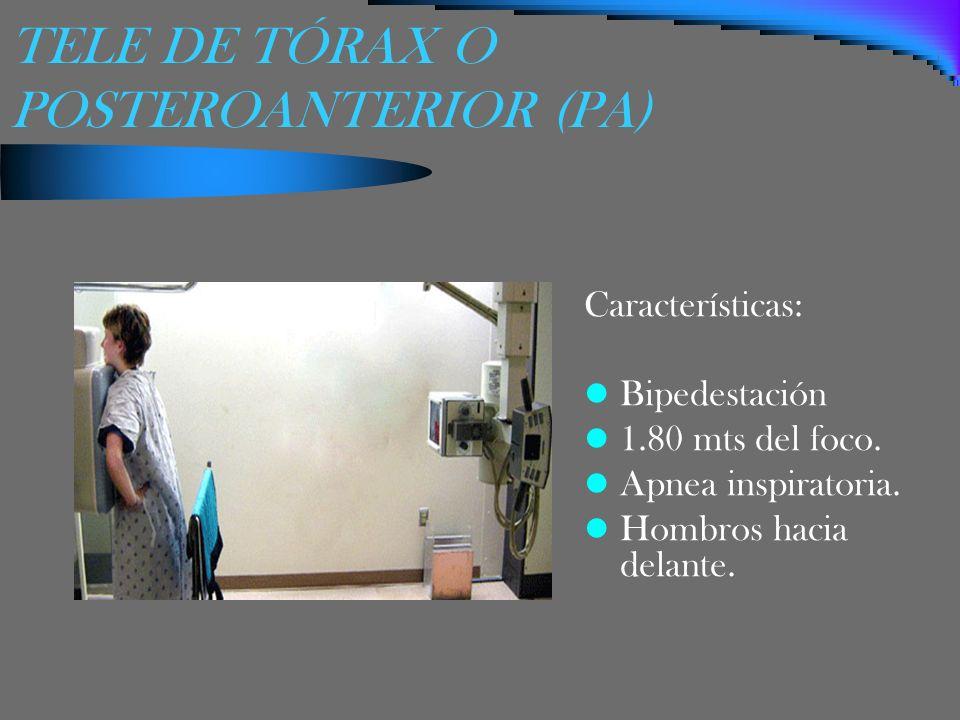 TELE DE TÓRAX O POSTEROANTERIOR (PA) Características: Bipedestación 1.80 mts del foco. Apnea inspiratoria. Hombros hacia delante.