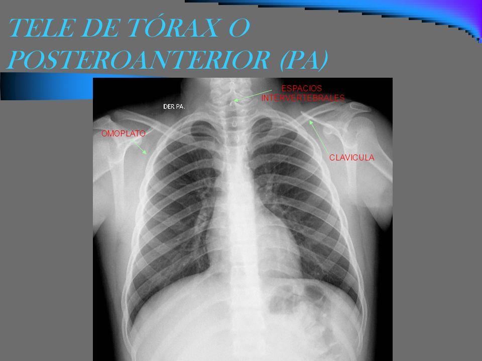 TELE DE TÓRAX O POSTEROANTERIOR (PA) OMOPLATO CLAVICULA ESPACIOS INTERVERTEBRALES