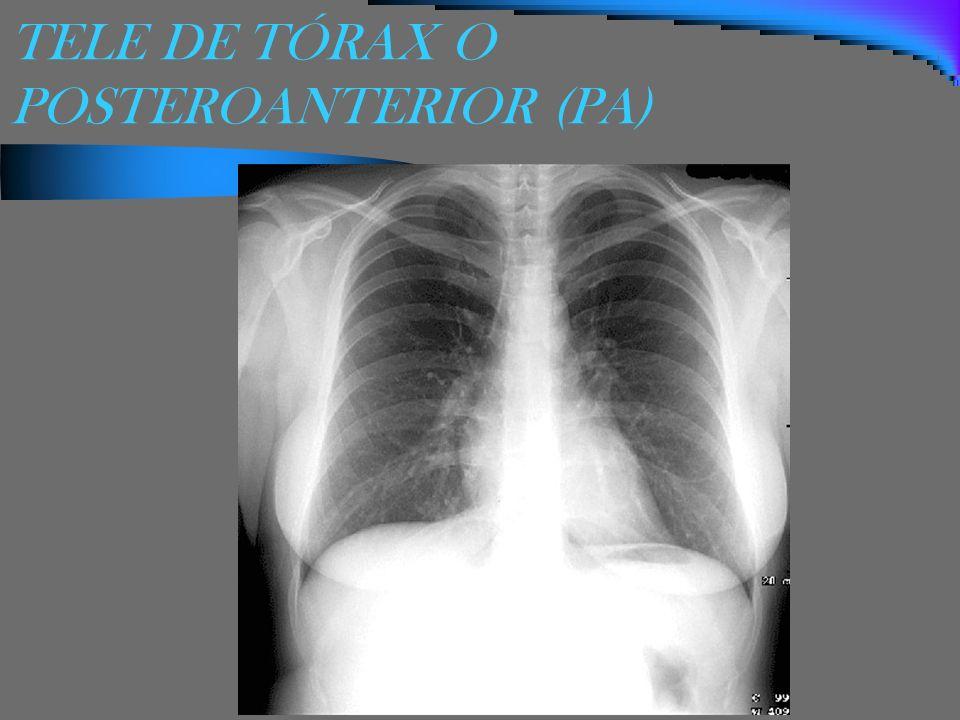 TELE DE TÓRAX O POSTEROANTERIOR (PA)