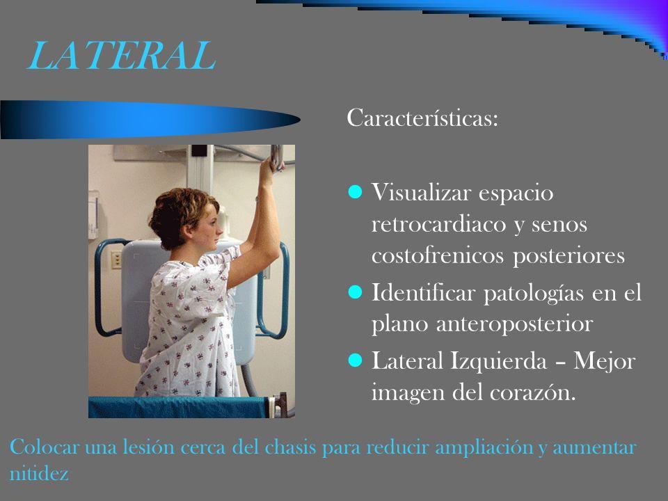 LATERAL Características: Visualizar espacio retrocardiaco y senos costofrenicos posteriores Identificar patologías en el plano anteroposterior Lateral