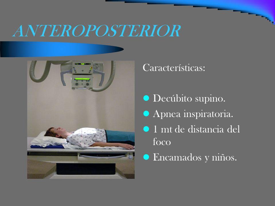 ANTEROPOSTERIOR Características: Decúbito supino. Apnea inspiratoria. 1 mt de distancia del foco Encamados y niños.