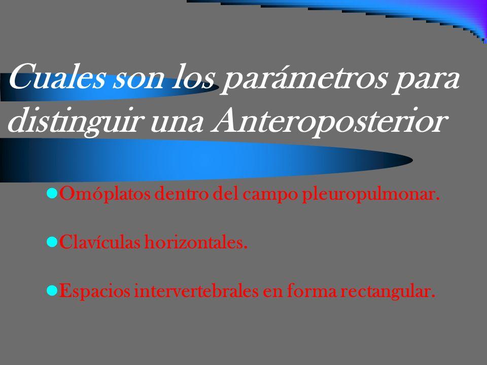 Cuales son los parámetros para distinguir una Anteroposterior Omóplatos dentro del campo pleuropulmonar. Clavículas horizontales. Espacios interverteb