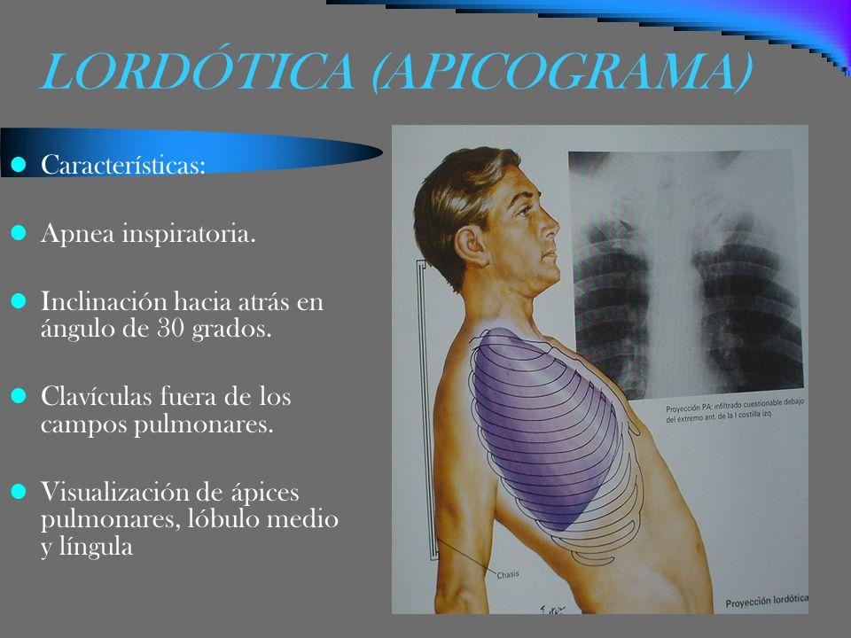 LORDÓTICA (APICOGRAMA) Características: Apnea inspiratoria. Inclinación hacia atrás en ángulo de 30 grados. Clavículas fuera de los campos pulmonares.