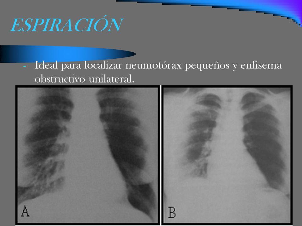 ESPIRACIÓN - Ideal para localizar neumotórax pequeños y enfisema obstructivo unilateral.