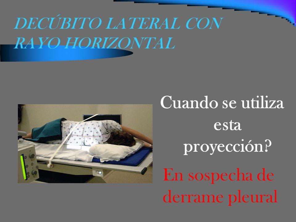 DECÚBITO LATERAL CON RAYO HORIZONTAL Cuando se utiliza esta proyección? En sospecha de derrame pleural