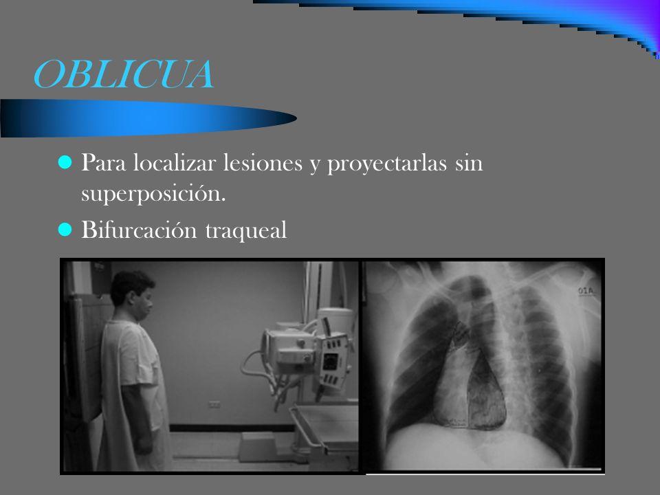 OBLICUA Para localizar lesiones y proyectarlas sin superposición. Bifurcación traqueal