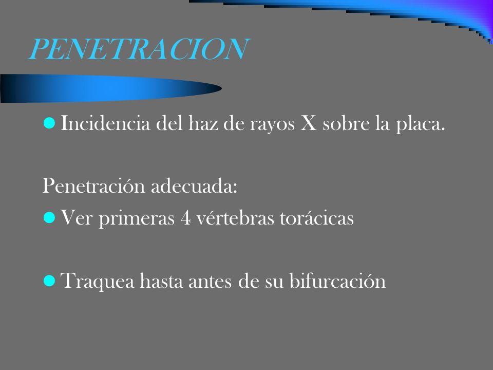 PENETRACION Incidencia del haz de rayos X sobre la placa. Penetración adecuada: Ver primeras 4 vértebras torácicas Traquea hasta antes de su bifurcaci