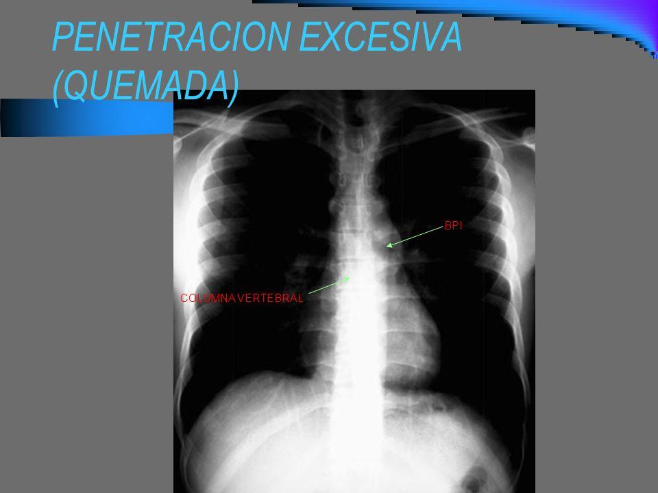 PENETRACION EXCESIVA (QUEMADA) BPI COLUMNA VERTEBRAL