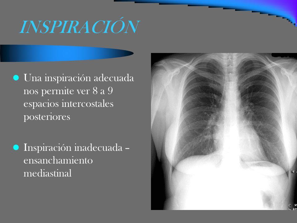 INSPIRACIÓN Una inspiración adecuada nos permite ver 8 a 9 espacios intercostales posteriores Inspiración inadecuada – ensanchamiento mediastinal