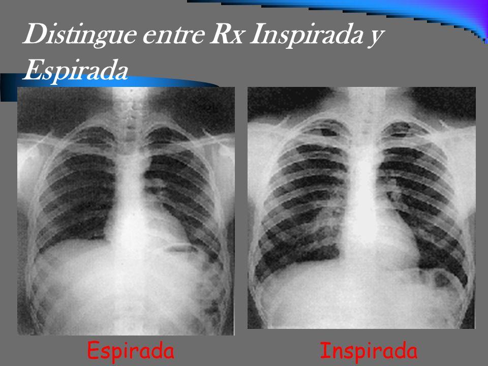 Distingue entre Rx Inspirada y Espirada EspiradaInspirada