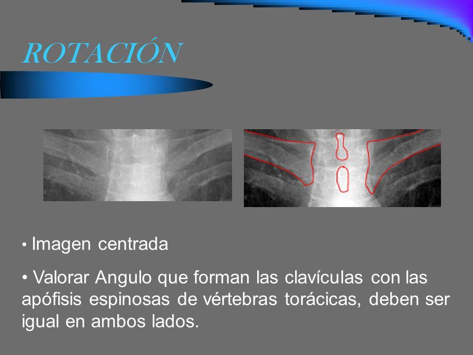 ROTACIÓN Imagen centrada Valorar Angulo que forman las clavículas con las apófisis espinosas de vértebras torácicas, deben ser igual en ambos lados.