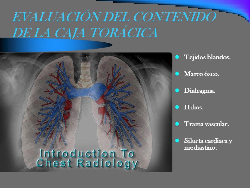 EVALUACIÓN DEL CONTENIDO DE LA CAJA TORÁCICA Tejidos blandos. Marco óseo. Diafragma. Hilios. Trama vascular. Silueta cardiaca y mediastino.