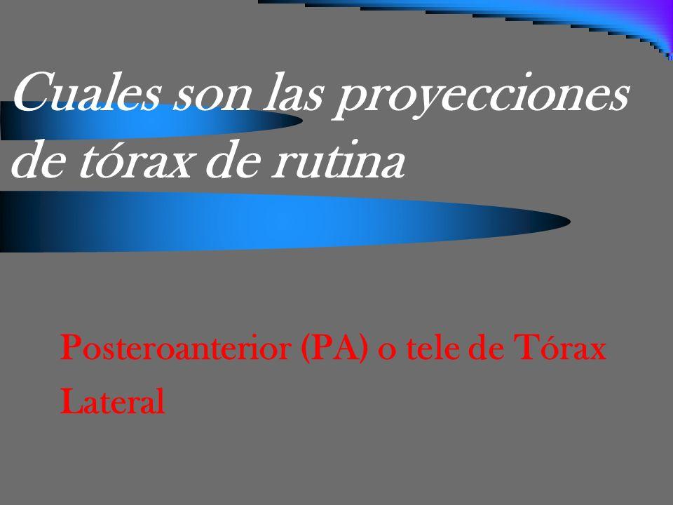 TELE DE TÓRAX O POSTEROANTERIOR (PA) Características: Bipedestación 1.80 mts del foco.