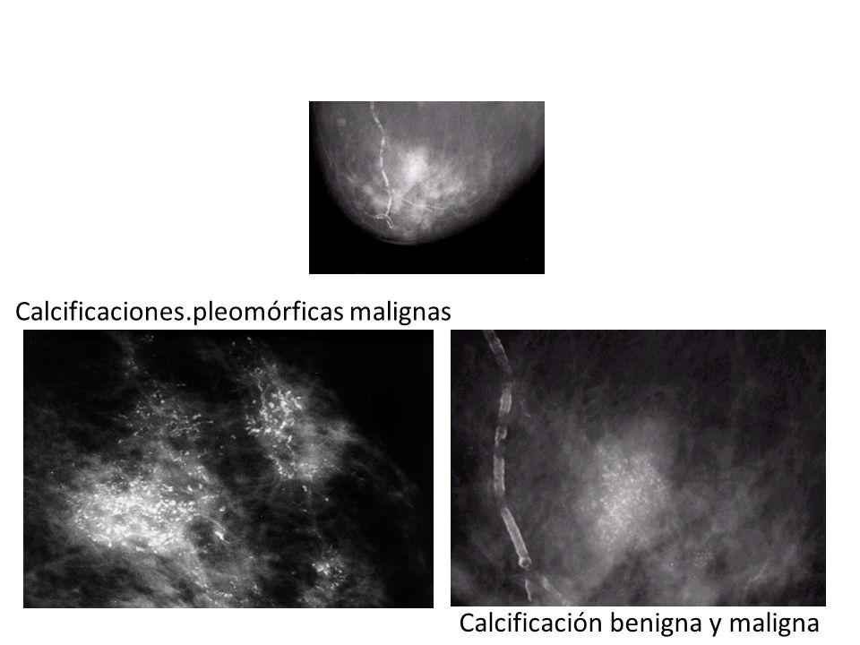 Calcificaciones Benignas – Redondas – Dispersas – Grandes – Bilaterales Benignas – Redondas – Dispersas – Grandes – Bilaterales *Malignas Irregulares