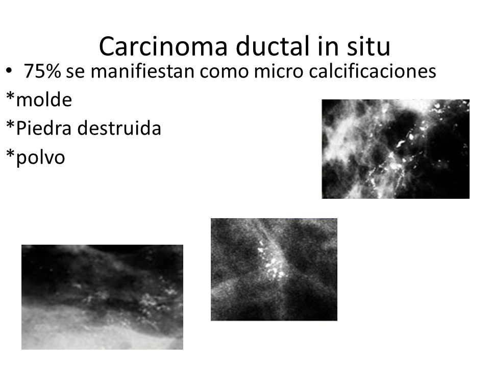 Calcificaciones.pleomórficas malignas Calcificación benigna y maligna