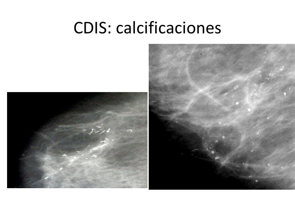 Carcinoma ductal in situ 75% se manifiestan como micro calcificaciones *molde *Piedra destruida *polvo