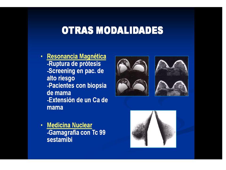 Incapaz para detectar microcalcificaciones, que son un signo muy importante de cáncer de mama precoz Cerca del 40% de los cánceres no palpables se man