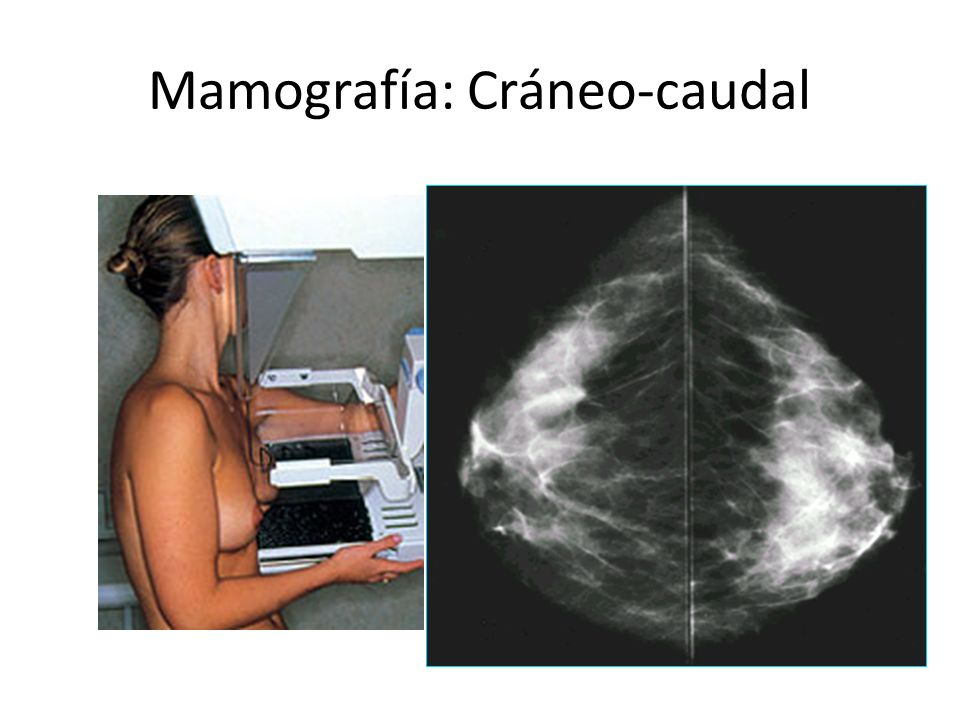 BIRADS 1 Normal Seguimiento en 1 año con una mamografía de screening regular