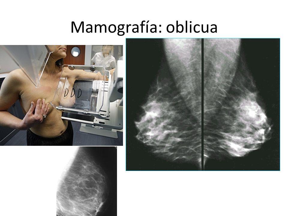 Mamografía: Cráneo-caudal