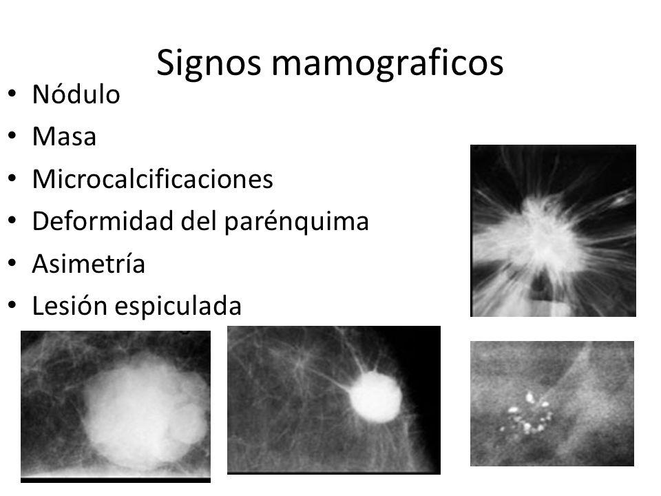 Mamografía: oblicua