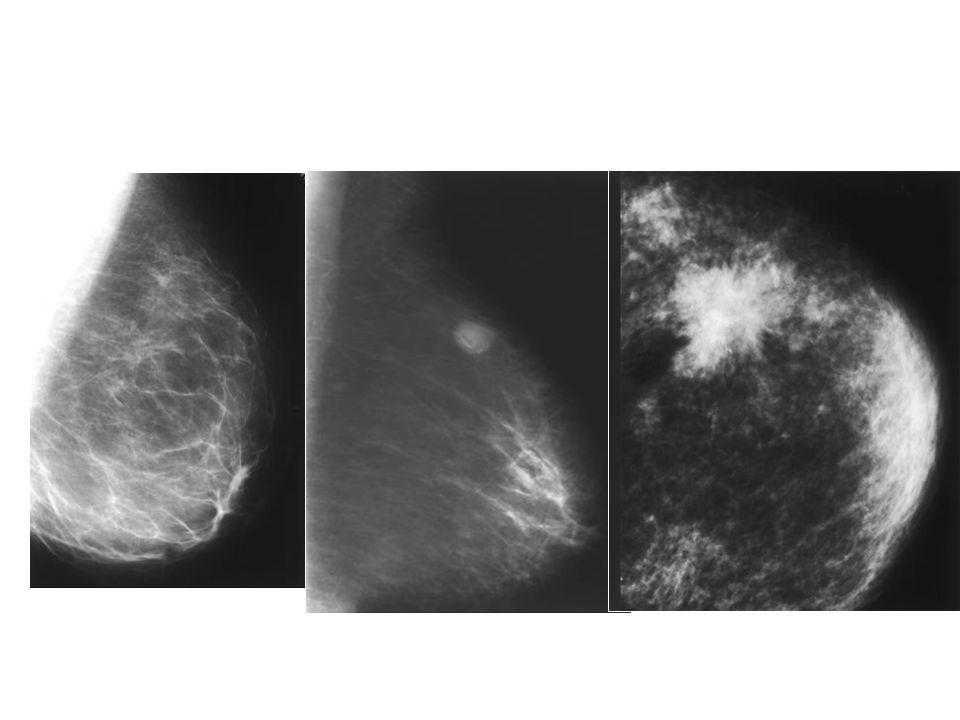 BIRADS 4 Sospechosa de malignidad Se recomienda biopsia: -por palpación -con guía de ecografía -con guía mamográfica -localización con alambre y escisión quirúrgica -por estereotaxia