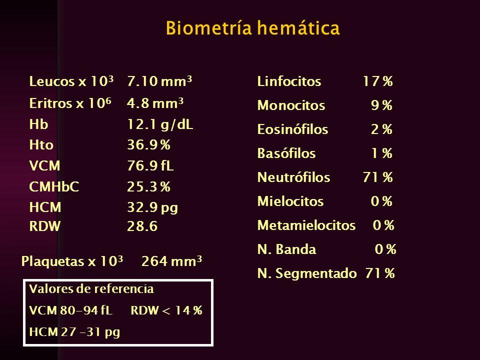 Biometría hemática Leucos x 10 3 7.10 mm 3 Eritros x 10 6 4.8 mm 3 Hb12.1 g/dL Hto36.9 % VCM76.9 fL CMHbC25.3 % HCM RDW 32.9 pg 28.6 Linfocitos 17 % M