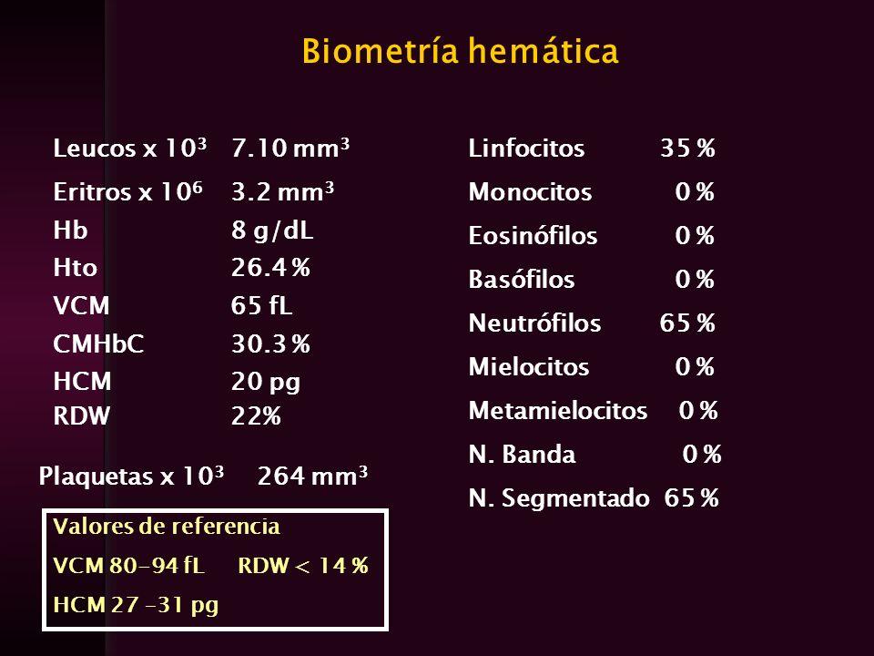 Biometría hemática Leucos x 10 3 7.10 mm 3 Eritros x 10 6 3.2 mm 3 Hb8 g/dL Hto26.4 % VCM65 fL CMHbC30.3 % HCM RDW 20 pg 22% Linfocitos 35 % Monocitos