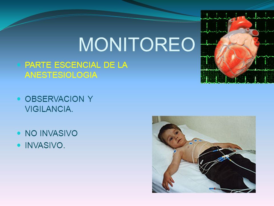 MONITOREO PARTE ESCENCIAL DE LA ANESTESIOLOGIA OBSERVACION Y VIGILANCIA. NO INVASIVO INVASIVO.
