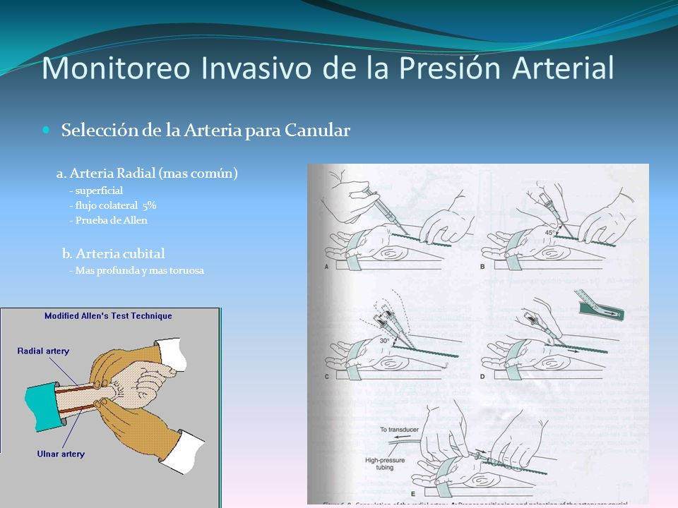 Monitoreo Invasivo de la Presión Arterial Selección de la Arteria para Canular a. Arteria Radial (mas común) - superficial - flujo colateral 5% - Prue