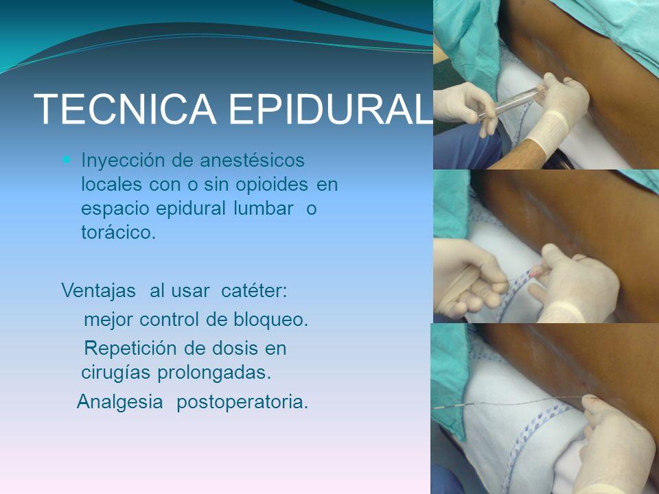 TECNICA EPIDURAL Inyección de anestésicos locales con o sin opioides en espacio epidural lumbar o torácico. Ventajas al usar catéter: mejor control de