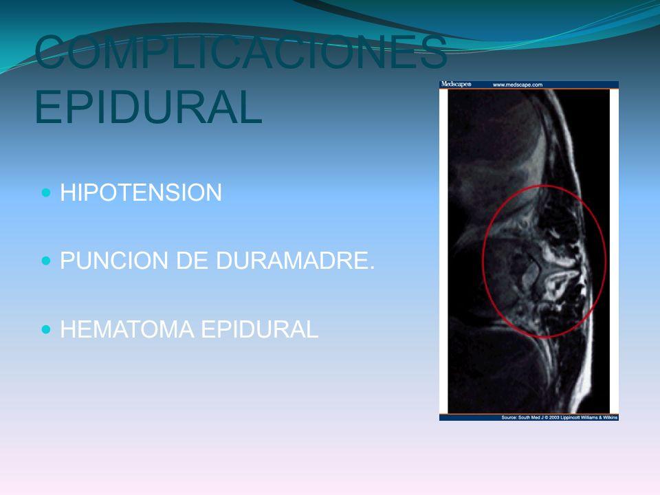 COMPLICACIONES EPIDURAL HIPOTENSION PUNCION DE DURAMADRE. HEMATOMA EPIDURAL