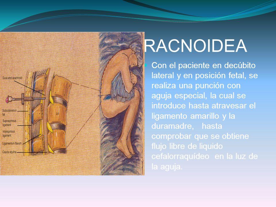TECNICA SUBARACNOIDEA Con el paciente en decúbito lateral y en posición fetal, se realiza una punción con aguja especial, la cual se introduce hasta a