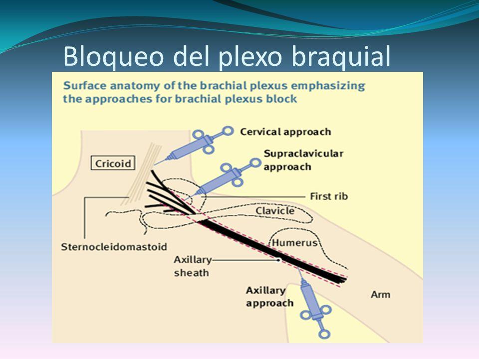 Bloqueo del plexo braquial