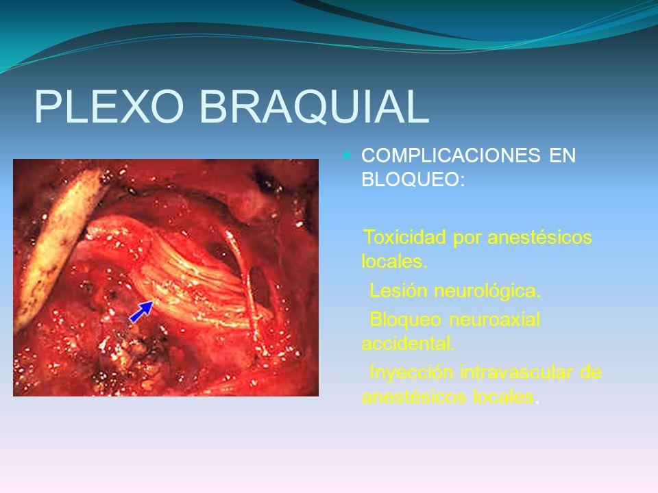 PLEXO BRAQUIAL COMPLICACIONES EN BLOQUEO: Toxicidad por anestésicos locales. Lesión neurológica. Bloqueo neuroaxial accidental. Inyección intravascula